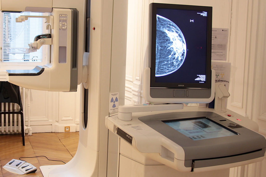Mammographe 3D